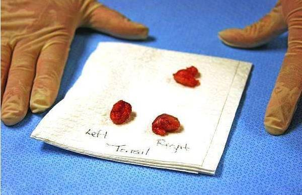 切除的腺样体组织