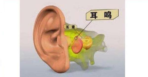 耳鸣怎么办,到底能不能治好?