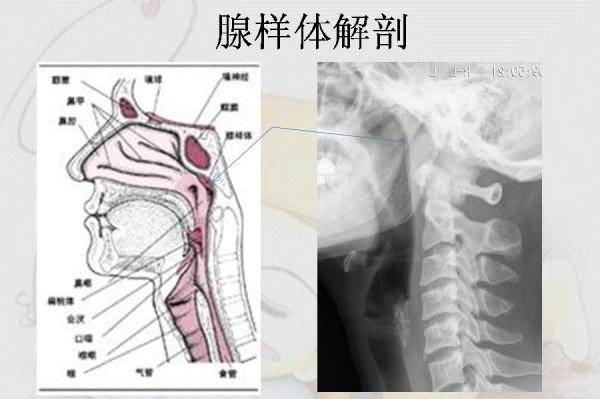 腺样体解剖图