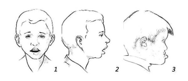腺样体面部