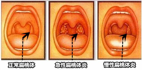 扁桃体分类