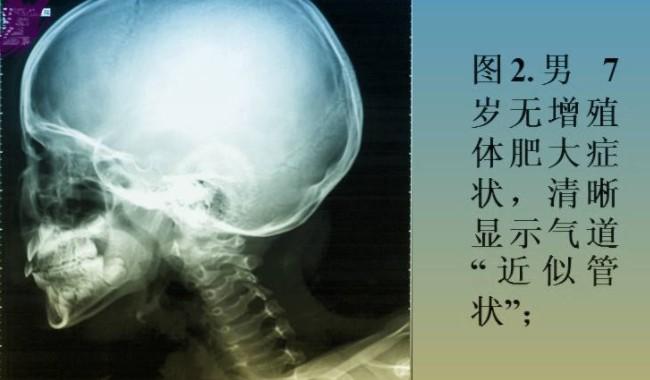 腺样体ct片