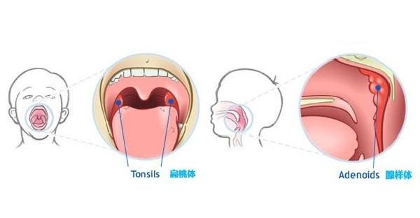 腺样体与扁桃体