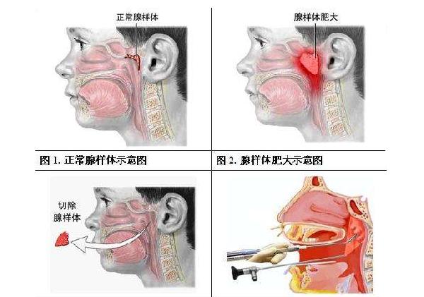 正常腺样体示意图