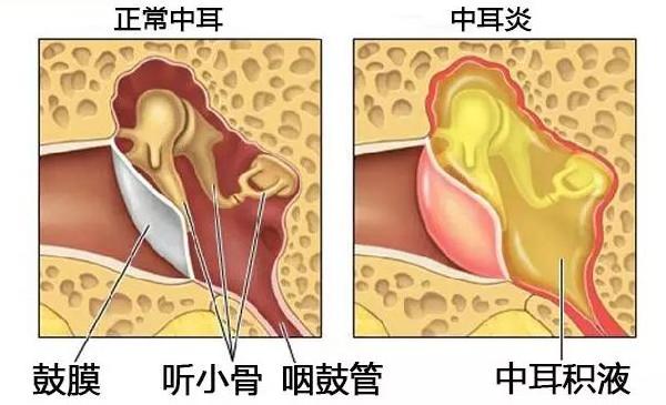 古草世家:中耳炎治疗最佳方法