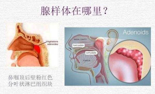 腺样体的位置