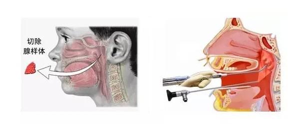 腺样体手术治疗