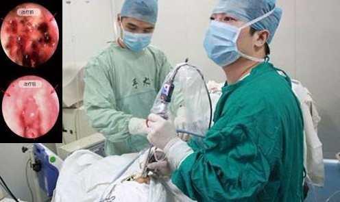 腺样体手术