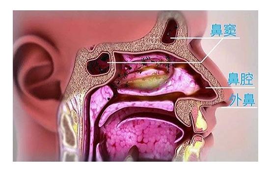过敏性鼻炎病因和治疗注意事项