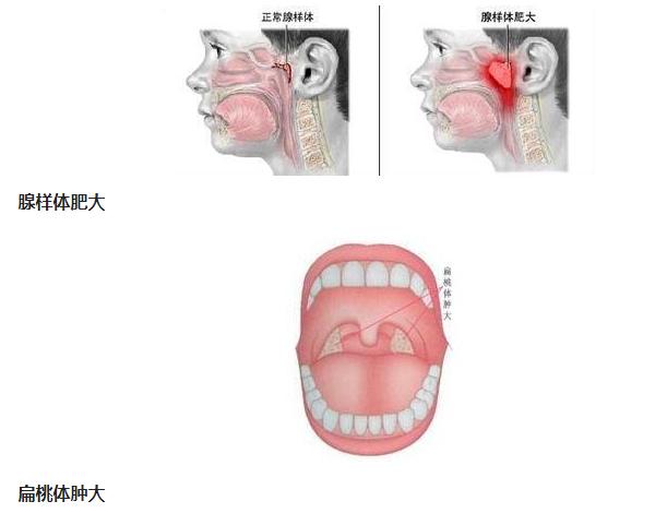 儿童为什么会打呼噜?因为两大因素:腺样体肥大或扁桃体肿大!