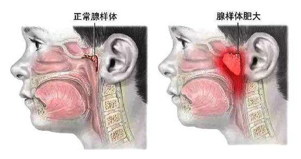 腺样体位置图