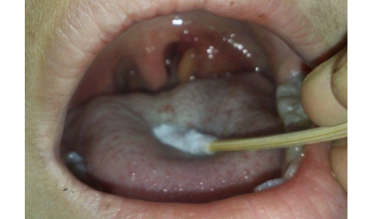 什么原因导致扁桃体发炎