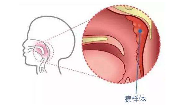 腺样体肥大引起腺样体面容,手术治疗未必一劳永逸!