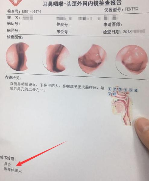 腺样体肥大报告单