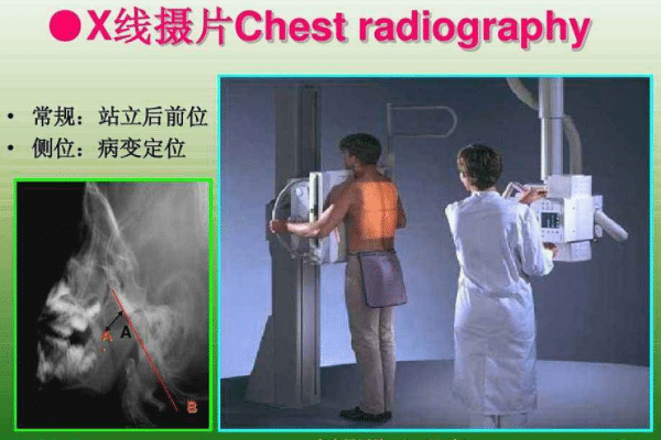 腺样体检查方法