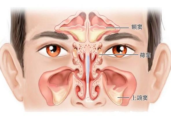 鼻炎会变成鼻癌吗?