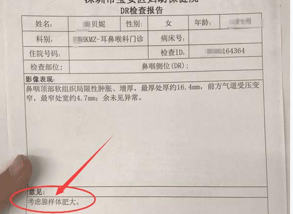 腺样体肥大检查报告单