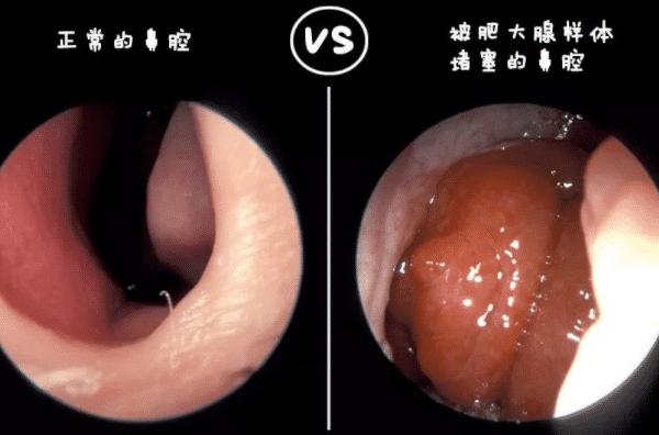 正常腺样体与肥大的腺样体