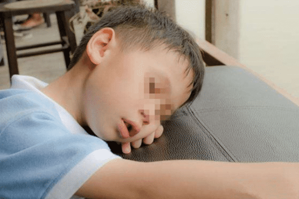 儿童腺样体肥大的症状?常见:夜间打呼噜憋气!