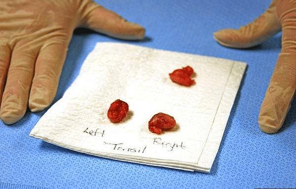 切除后的腺样体组织
