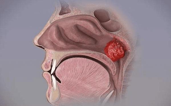 儿童腺样体手术,扁桃体手术的五大常见问题解答!