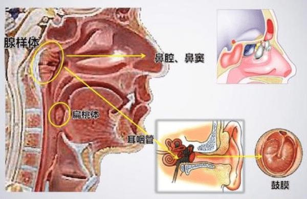腺样体与扁桃体的病因