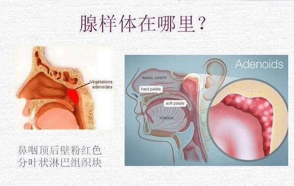 腺样体肥大扁桃体发炎的症状