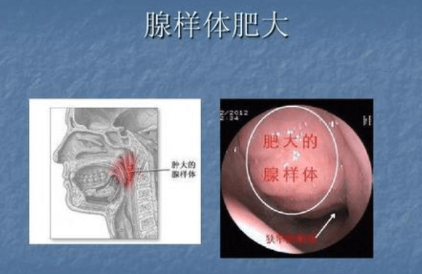 古草世家:关于孩子扁腺体的重要性与危害!