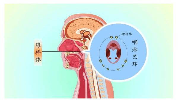 腺样体自愈网:详细带你了解关于腺样体肥大系列问题!