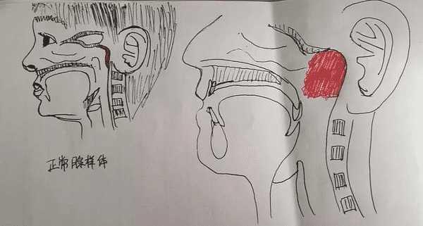 腺样体肥大位置图