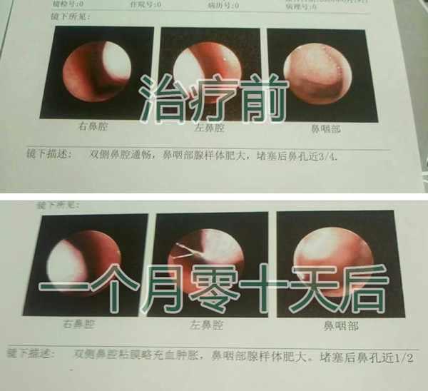 腺样体报告单