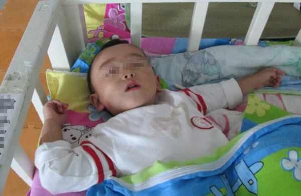 腺样体案例:5岁孩子腺样体肥大求医及手术过程分享!