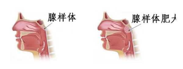 古草世家:避免炎症反复刺激腺样体,或许就不会造成腺样体肥大!