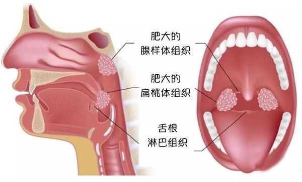 腺样体与扁桃体是否割除,父母应考虑下列4种顾忌!