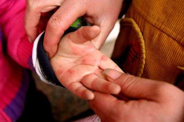 古草世家:手足口病高发期,家长需了解该病传播因素!