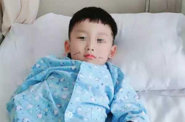 儿童腺样体肥大手术住院6天,父母亲身经历总结!(精选长文)