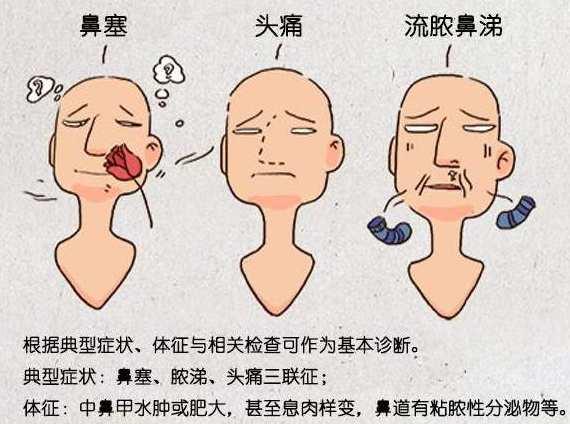 我有鼻窦炎怎么办